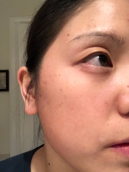 Slight swelling in bottom lid and separation of lashes in top lid due to swelling